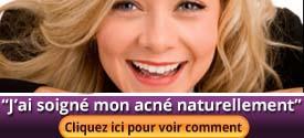 Une gestion efficace de acné soigné acné naturellement